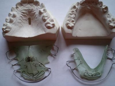 Zahnspange mit Abdrücken
