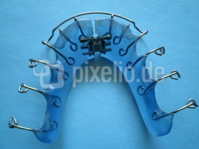 Blaue Unterkiefer Zahnspange