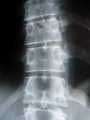 Wirbelsäule (Röntgenbild)