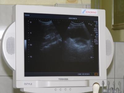 Ultraschall 2