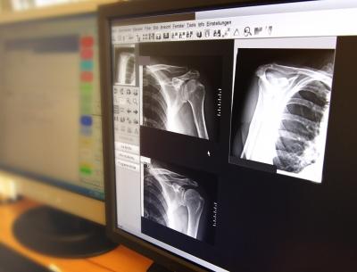 Röntgenbilder am Bildschirm