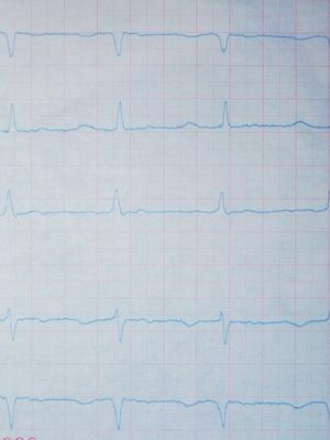 Herztöne