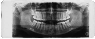 Zahnpanorama, Röntgenaufnahme